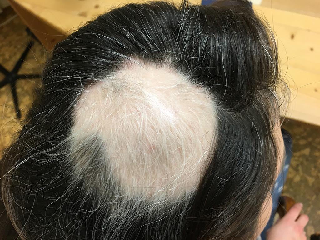Bild 1 vom 31.1.2017 Kreisrunder Haarausfall vor Behandlung